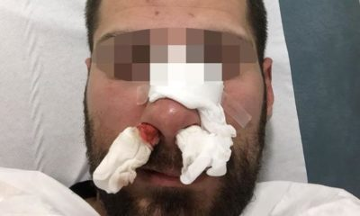 policia agredido