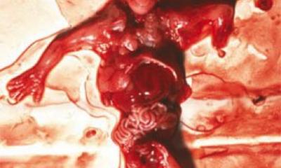 abortion photo 4