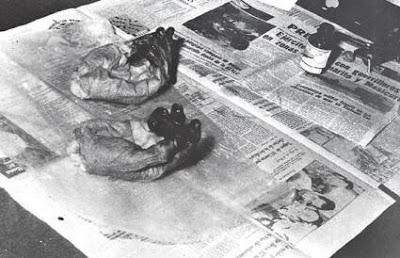 Manos de Ernesto Guevara, guardadas como prueba de su muerte.